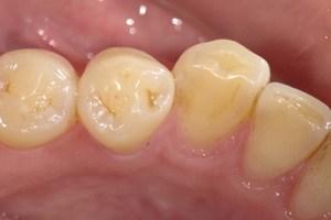 初期、かみ合わせ面が凹んできた酸蝕歯