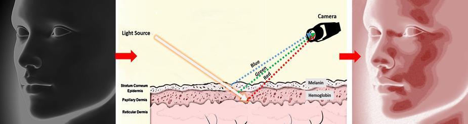 経皮光学撮像